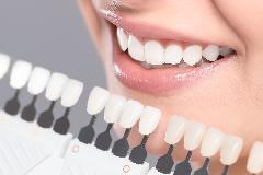 Como Clarear os dentes?